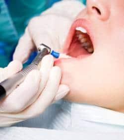 La transparence des tarifs dentaires remise en question.