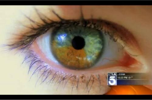 Avoir des yeux bleus c'est désormais possible grâce au laser !