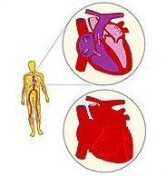 Ces femmes qui nous volent le «monopole» des accidents cardio-vasculaires