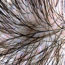 Greffe de cheveux sans cicatrice visible : une réalité  (2ème partie)