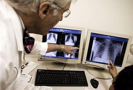 Tuberculose : la lutte se poursuit pour Unitaid