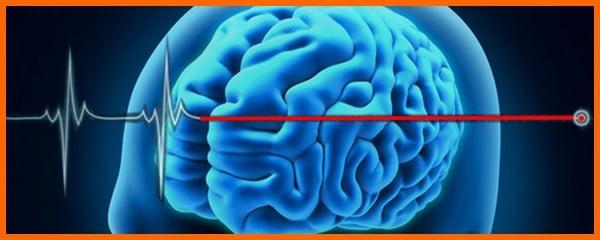 Mort cérébrale … Et pourquoi ne pas ressusciter ?